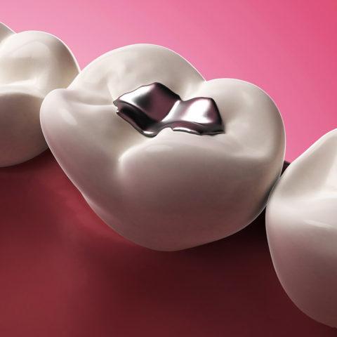 نانومواد ترمیمی دندان